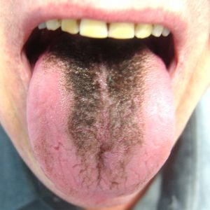 Hairy Tongue