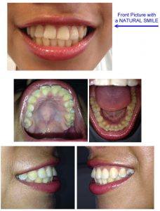 Angles for your Dental pictures - All-on-4 in Cancun