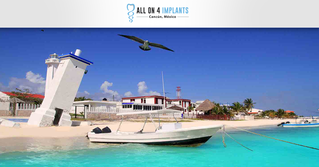 Puerto Morelos - All-on-4 dental implant in Cancun